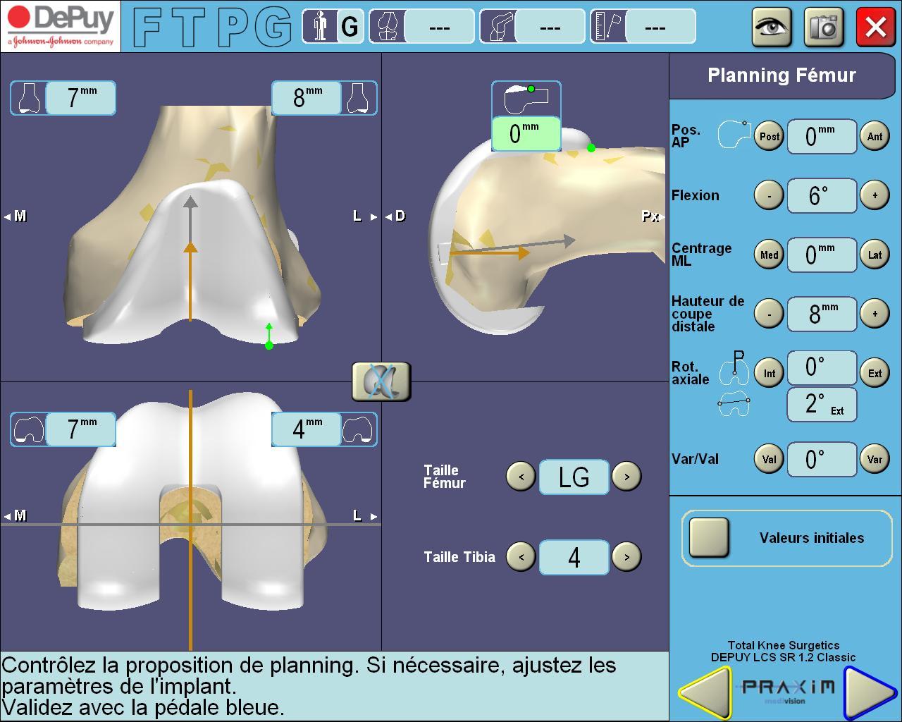 Chirurgie assistée par ordinateur et Prothèse totale de genou (PTG naviguée)