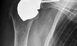 Prothèse d'épaule inversée sans tige Dr Ballas