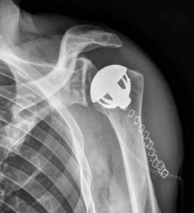 Prothèse-d'épaule-sans-tige-totale-anatomique
