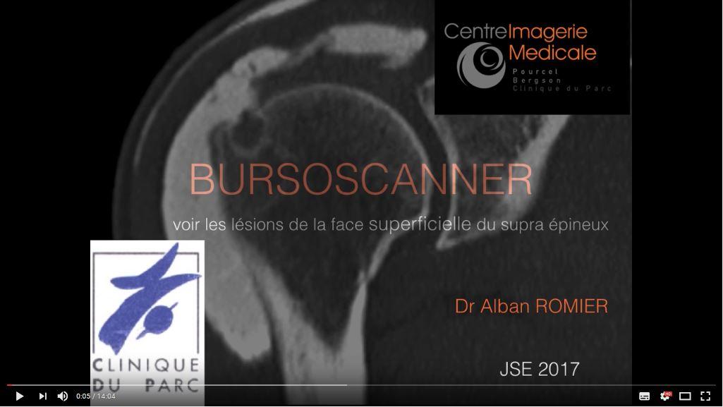 Bursoscanner – Dr Alban Romier, Clinique du Parc – Saint-Etienne