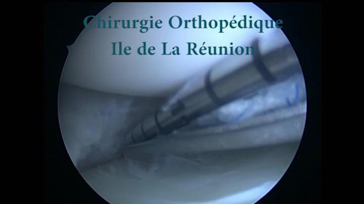 Examen clinique du genou : diagnostic clinique d'une rupture du ligament croisé antérieur